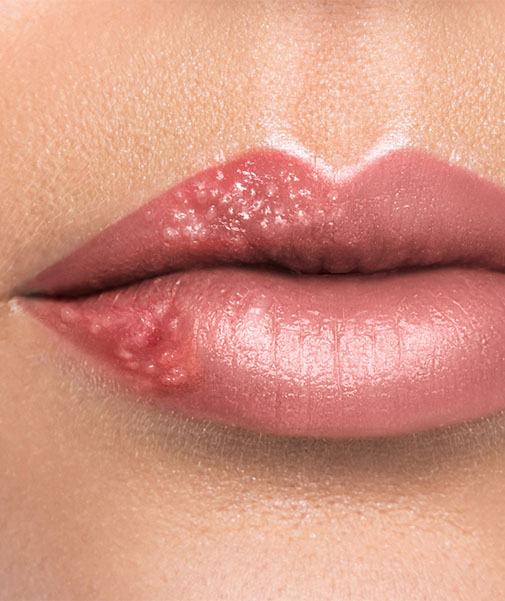 Lippenherpes Dauer Verkürzen