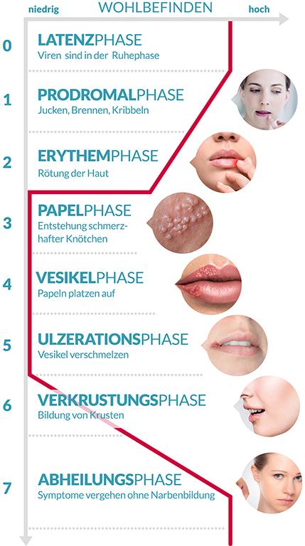 Geht herpes nicht weg narbe Lippenherpes schnell